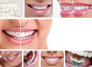 ortodoncja Wrocław najlepsza klinika