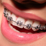 Kobieta z aparatem ortodontycznym na zębach