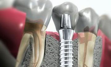 Implanty w przekroju