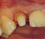 Wkład korzeniowy między zębami