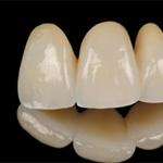 porcelanowe mosty stomatologiczne