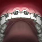 zęby w trakcie leczenia aparatem