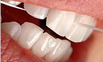 Czyszczenie zębów nicią dentystyczną