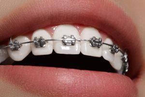 Klasyczny, stały aparat ortodontyczny.