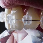 Estetyczny aparat ortodontyczny z wysoką skutecznością leczenia.