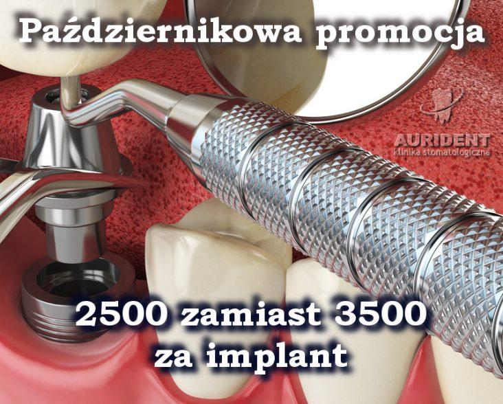 W Aurident implanty o 1000 zł tańsze!