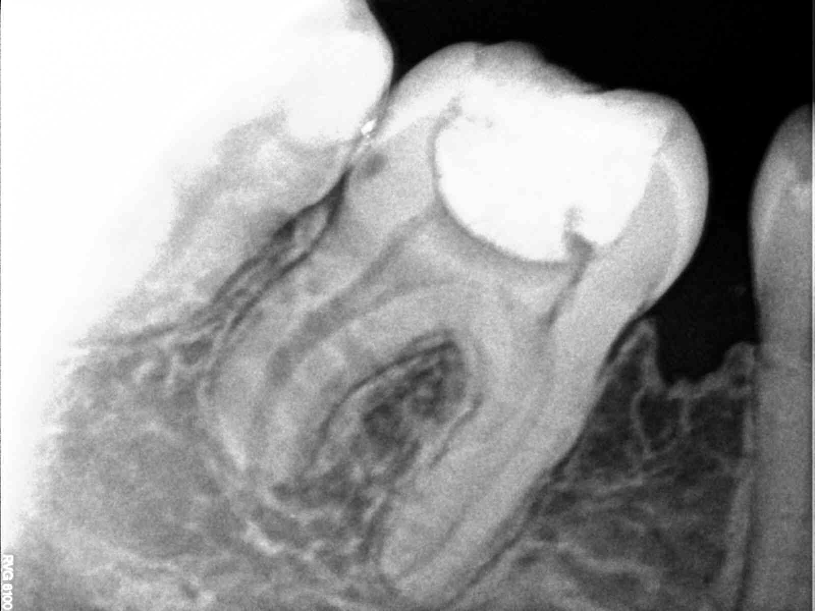 wybielanie zębów wroclaw cennik