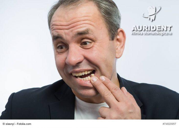 Ukruszone zęby trzeba naprawiać jak najszybciej!