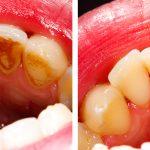 Kamień na zębach przed i po usunięciu.