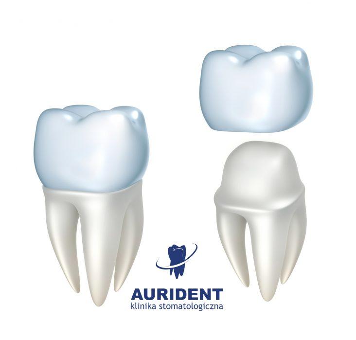 Aurident - Czym jest korona protetyczna?