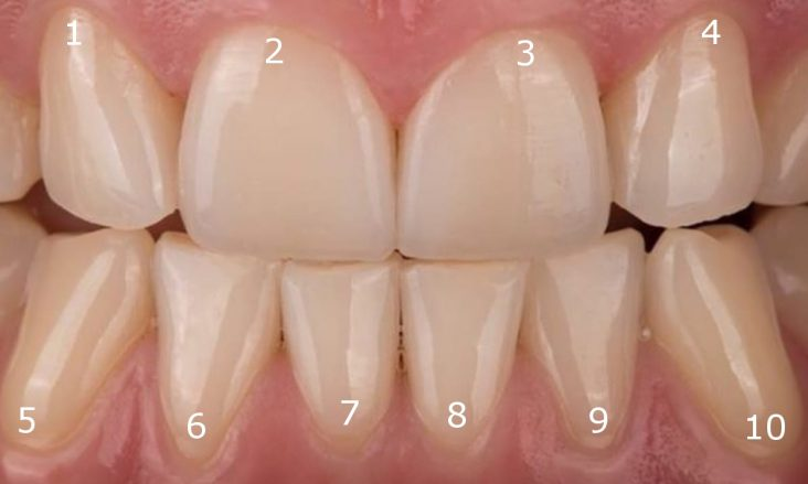 Aurident - Konkurs, zgadnij który ząb ma wypełnienie i wygraj bezpłatne wypełnienie kompozytowe.