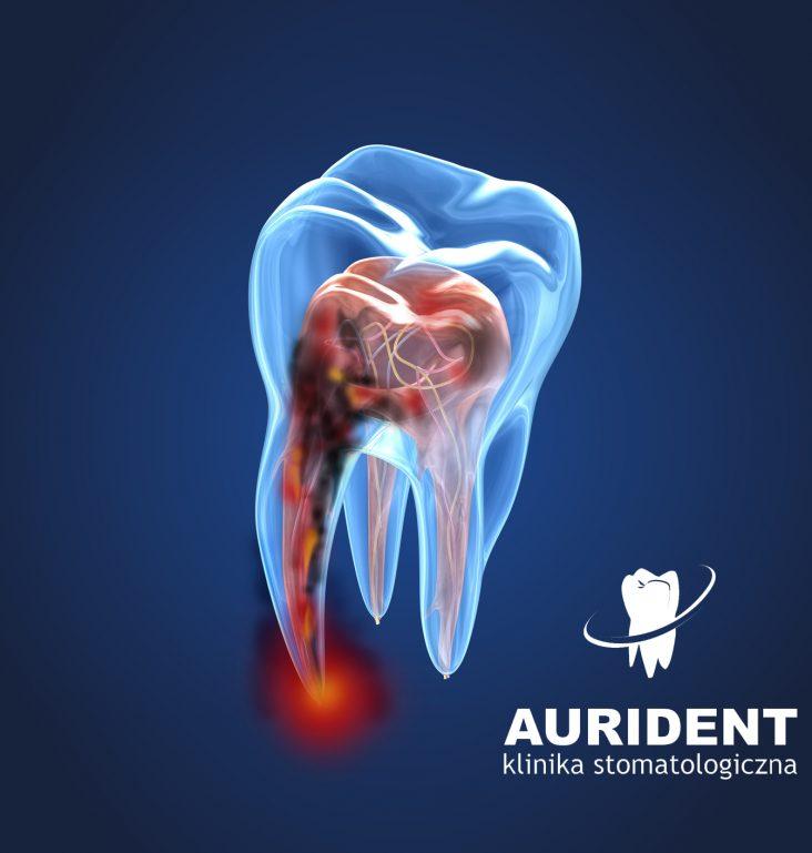 Nadwwrażliwość zębów - Zapraszamy do Aurident!