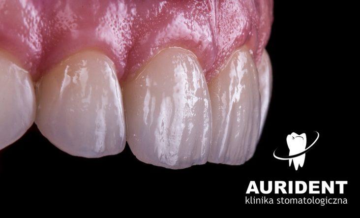 Periodontologia w Aurident