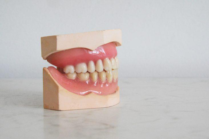 Jak wygląda zabieg lakowania zębów?