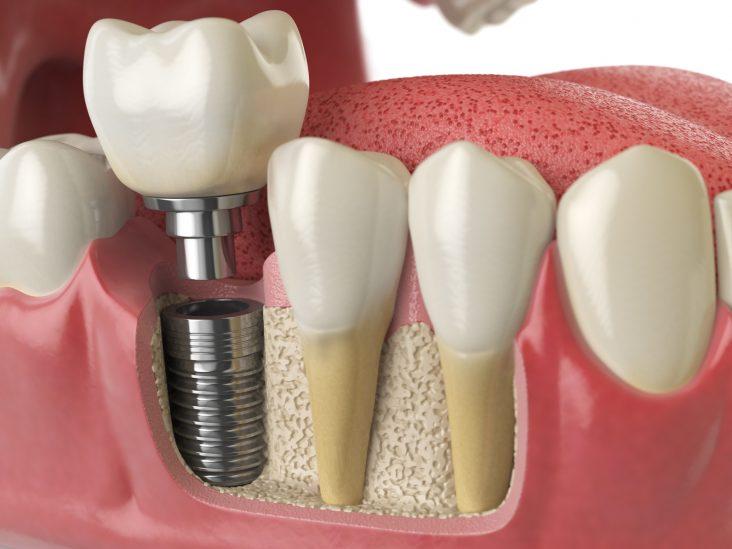 Zima najlepszy czas na zabiegi stomatologiczne Aurident